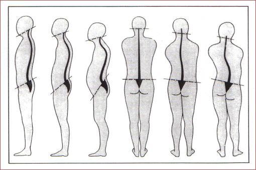 Beckenschiefstand - Betrachtung der Osteopathie