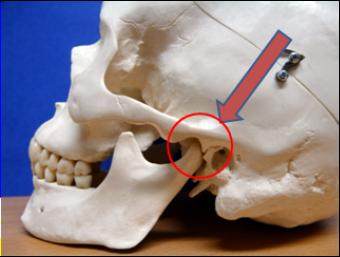 Anatomie - CMD