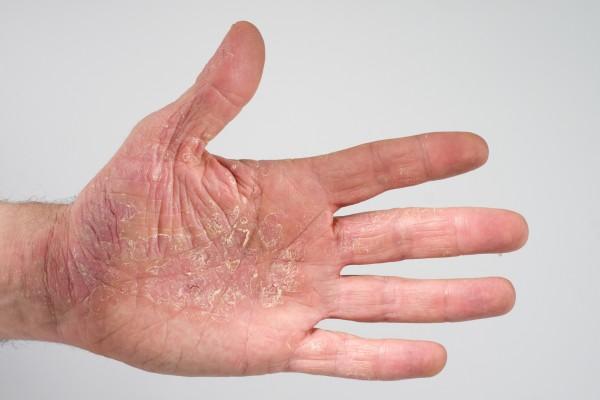 Dermatologie -  Ekzem