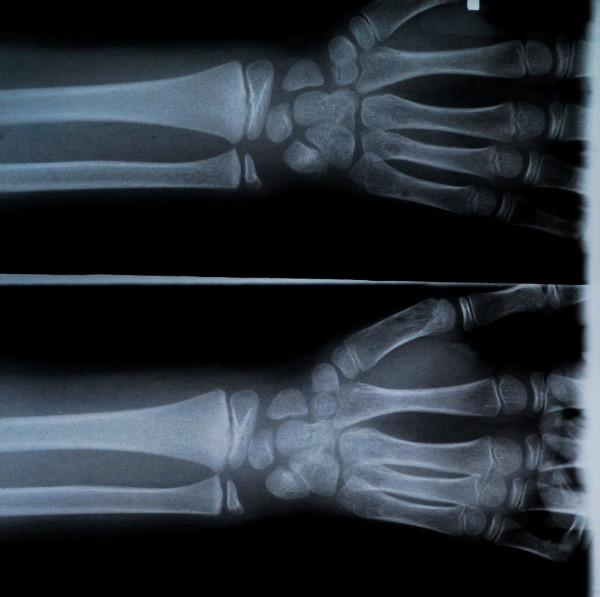 Rheumatologie Diagnose